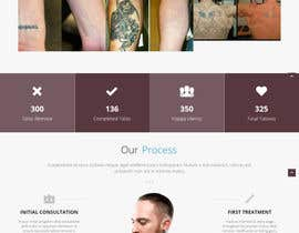 #5 for Premium Tattoo Removal Website by SALESDGWEB