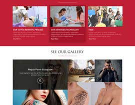 #11 for Premium Tattoo Removal Website by adixsoft