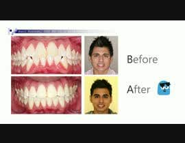 #16 cho create a video movie for before and after dental cases for Mall advertising bởi winesajal