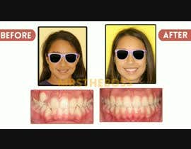 #19 cho create a video movie for before and after dental cases for Mall advertising bởi mrstheboss
