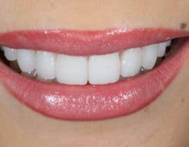 asad128 tarafından I need a collection of pictures suitable for dental-websites için no 6